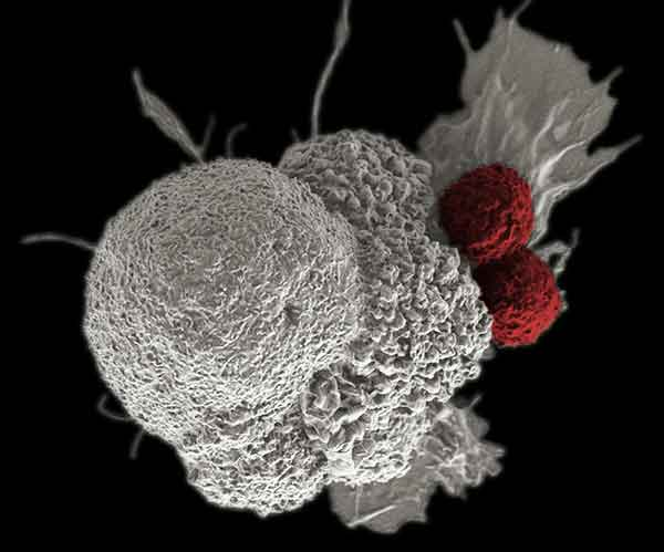 Immunotherapy to Treat Cancer